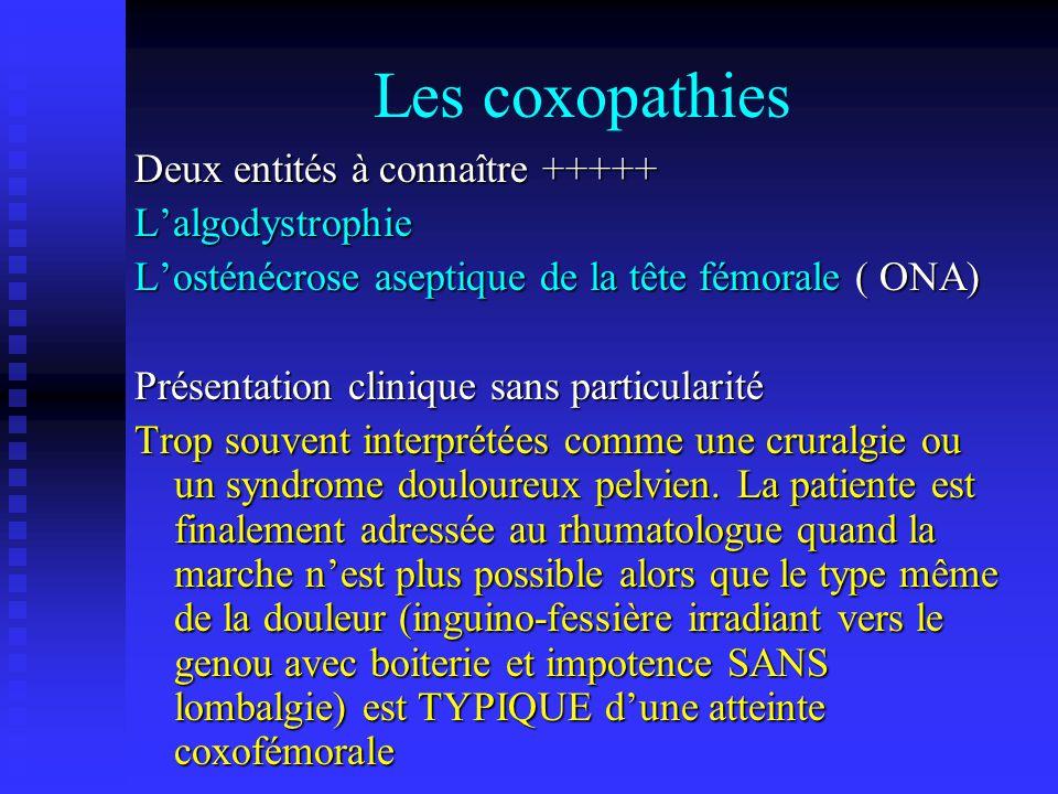 Les coxopathies Deux entités à connaître +++++ L'algodystrophie