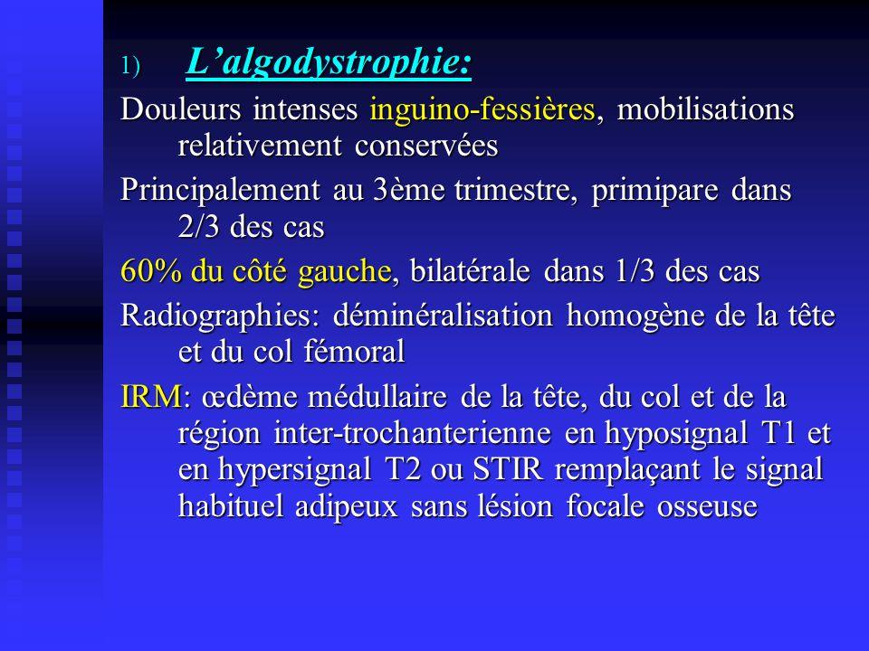 L'algodystrophie: Douleurs intenses inguino-fessières, mobilisations relativement conservées.