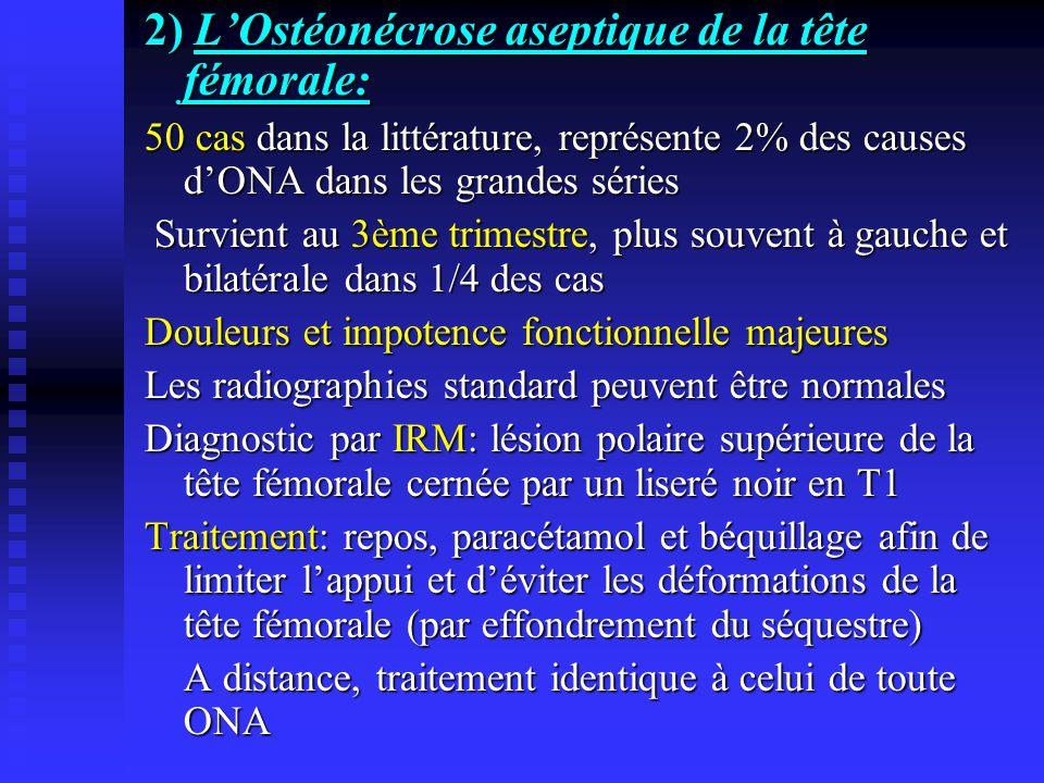 2) L'Ostéonécrose aseptique de la tête fémorale: