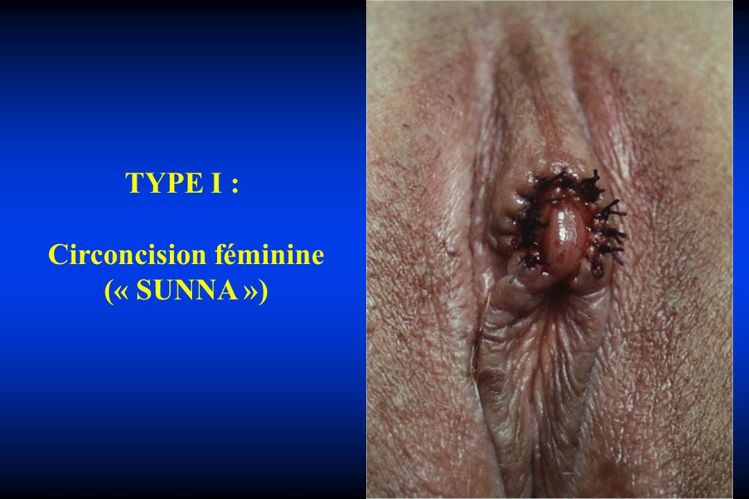 Circoncision féminine