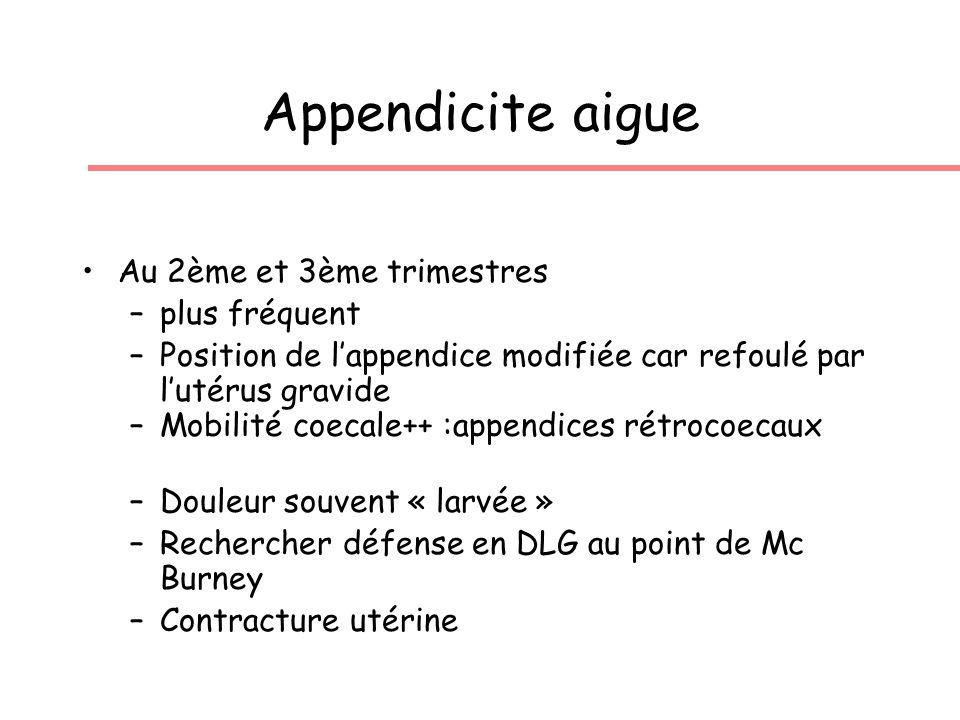 Appendicite aigue Au 2ème et 3ème trimestres plus fréquent