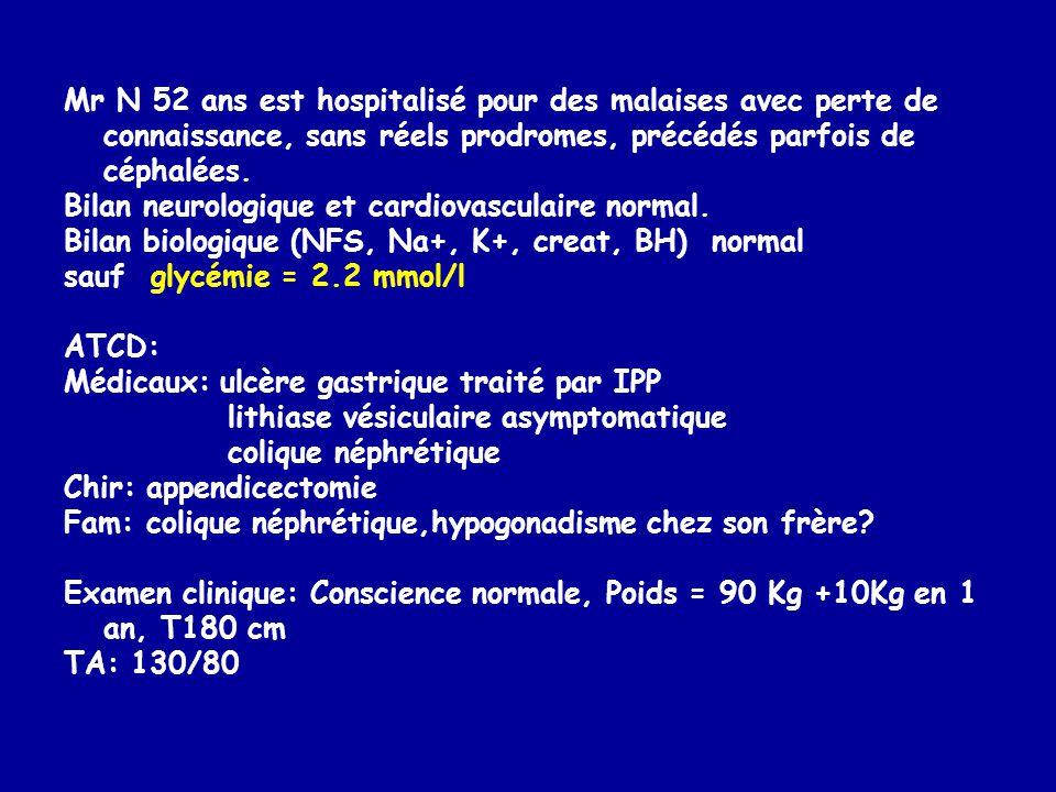 Mr N 52 ans est hospitalisé pour des malaises avec perte de connaissance, sans réels prodromes, précédés parfois de céphalées.