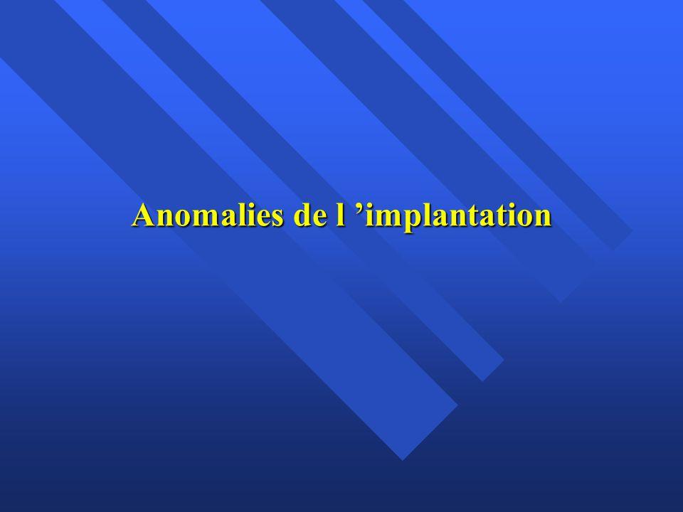 Anomalies de l 'implantation