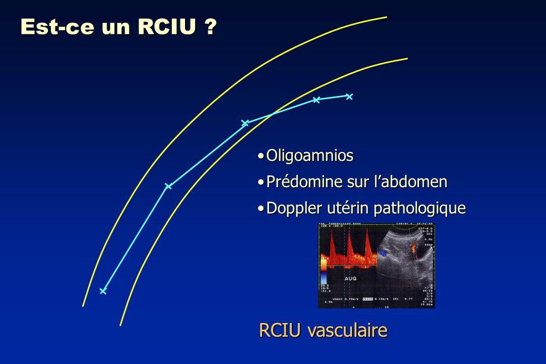 Est-ce un RCIU RCIU vasculaire Oligoamnios Prédomine sur l'abdomen
