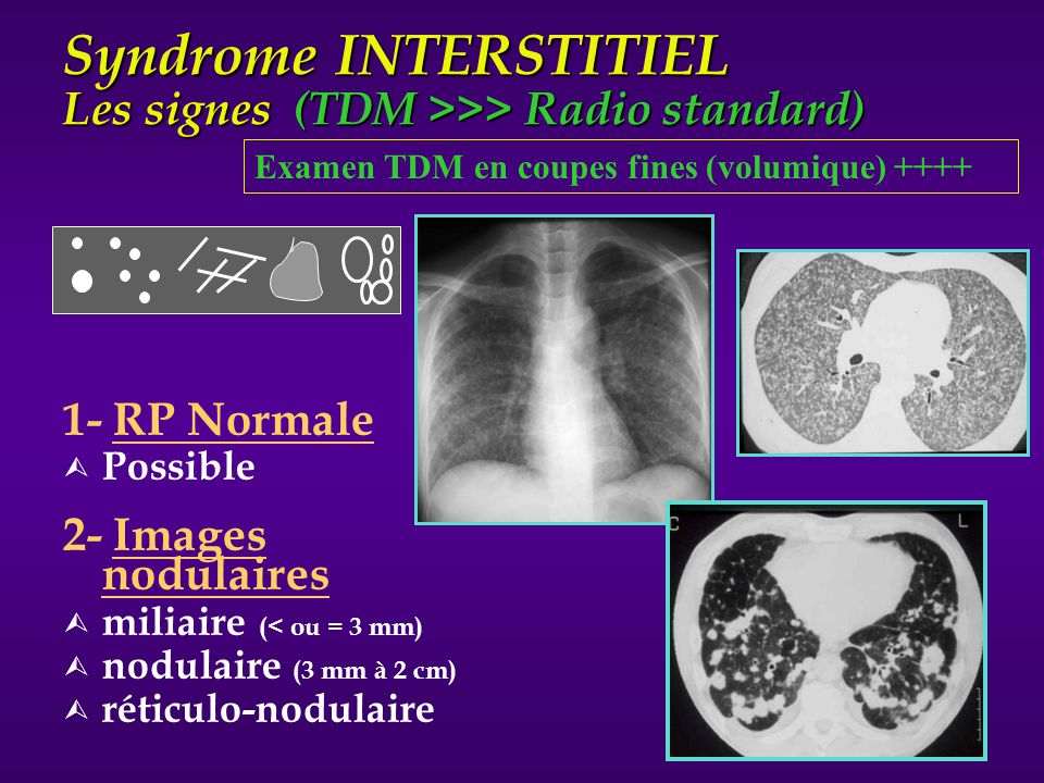 Syndrome INTERSTITIEL Les signes (TDM >>> Radio standard)