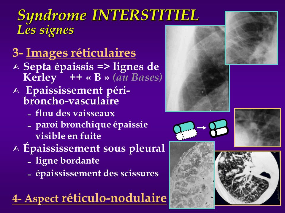 Syndrome INTERSTITIEL Les signes