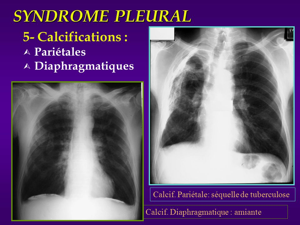 SYNDROME PLEURAL 5- Calcifications : Pariétales Diaphragmatiques