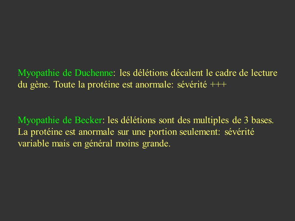 Myopathie de Duchenne: les délétions décalent le cadre de lecture