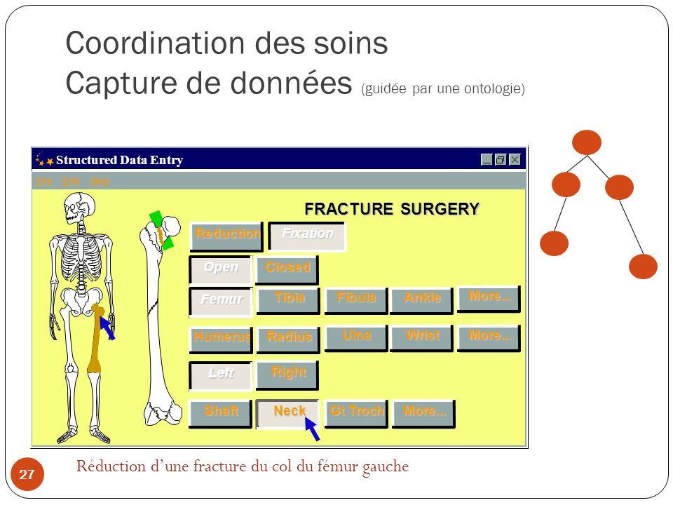 Coordination des soins Capture de données (guidée par une ontologie)
