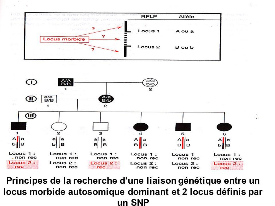 Principes de la recherche d'une liaison génétique entre un locus morbide autosomique dominant et 2 locus définis par un SNP