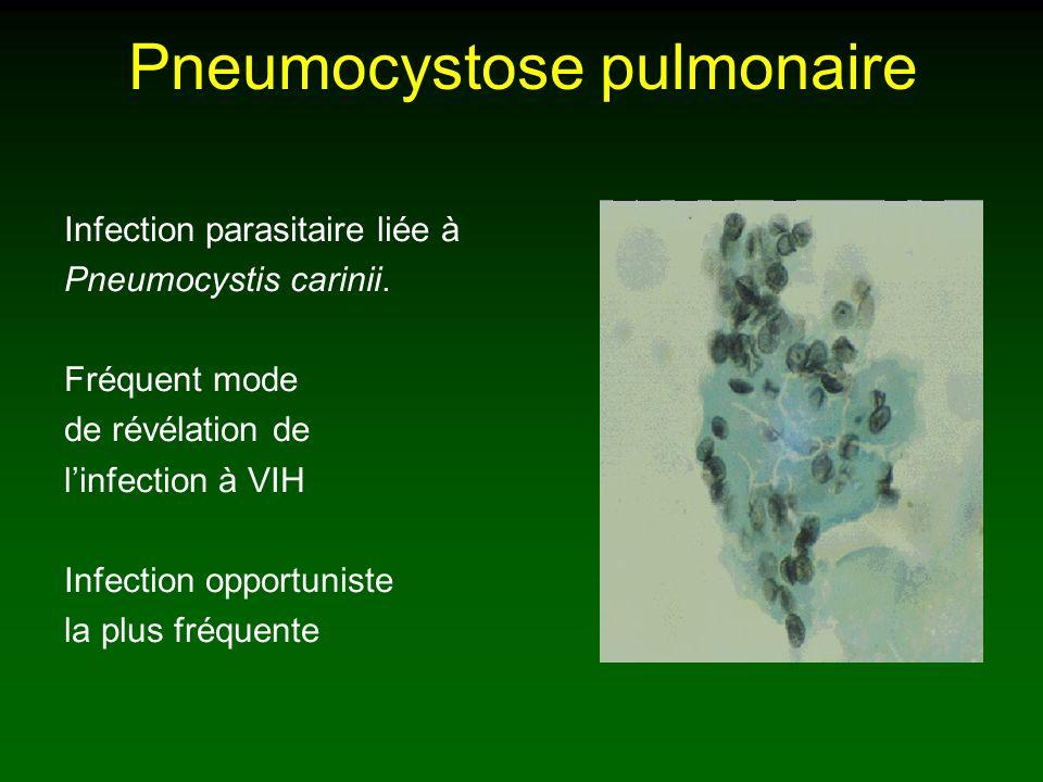 Pneumocystose pulmonaire