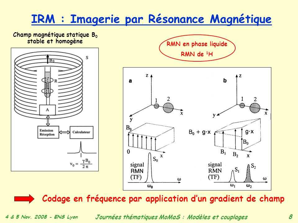 IRM : Imagerie par Résonance Magnétique