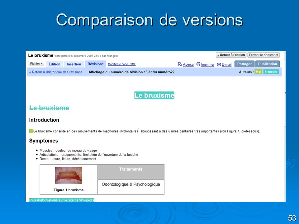 Comparaison de versions
