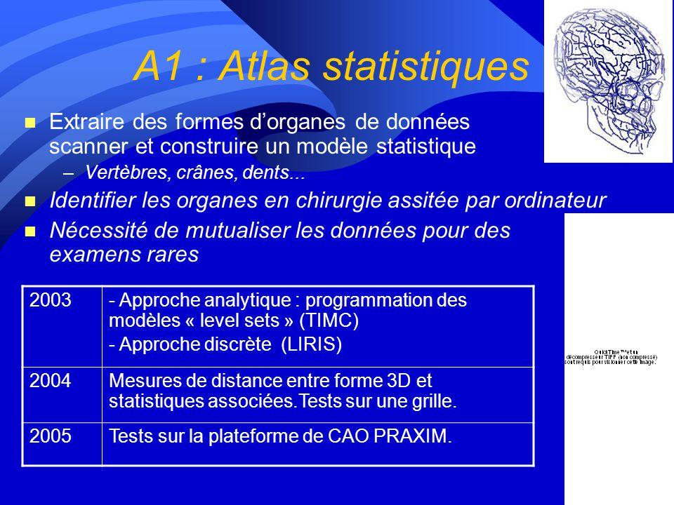 A1 : Atlas statistiques Extraire des formes d'organes de données scanner et construire un modèle statistique.