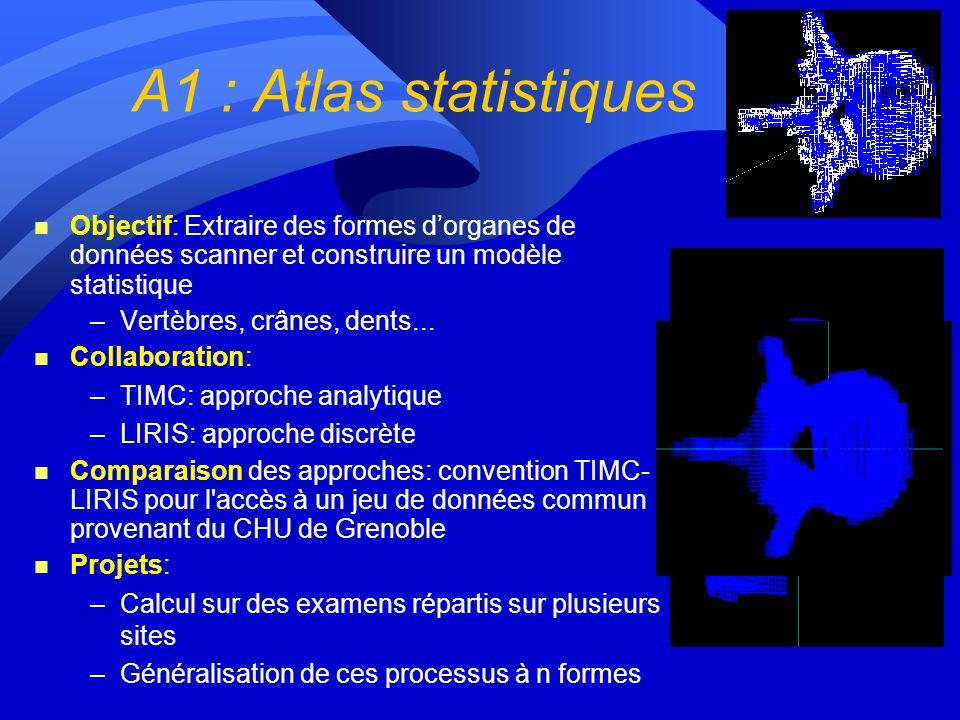A1 : Atlas statistiques Objectif: Extraire des formes d'organes de données scanner et construire un modèle statistique.