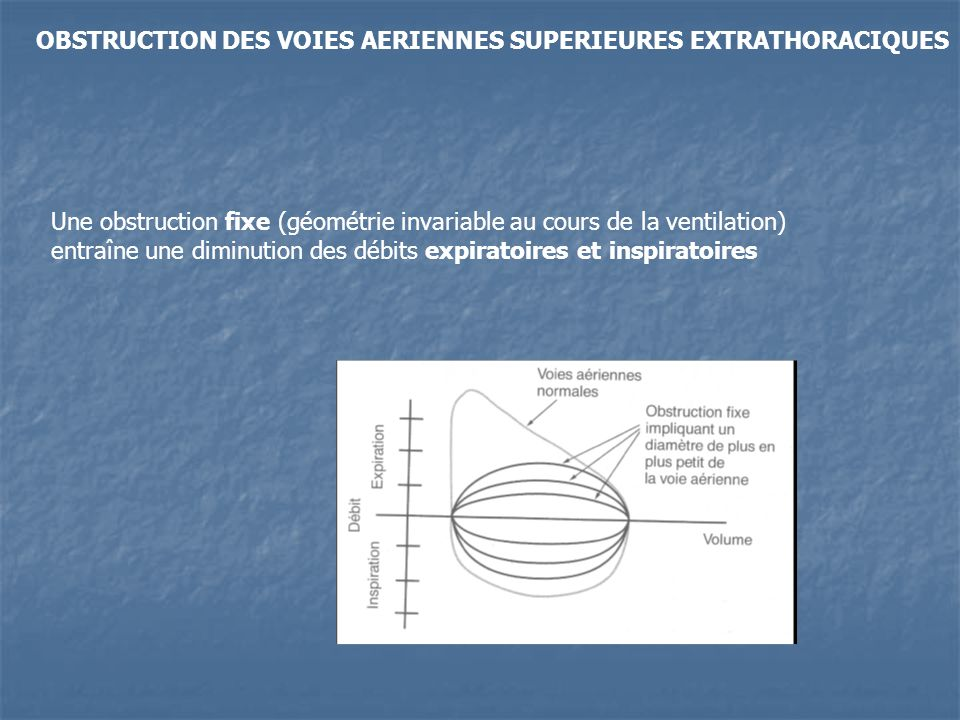 OBSTRUCTION DES VOIES AERIENNES SUPERIEURES EXTRATHORACIQUES