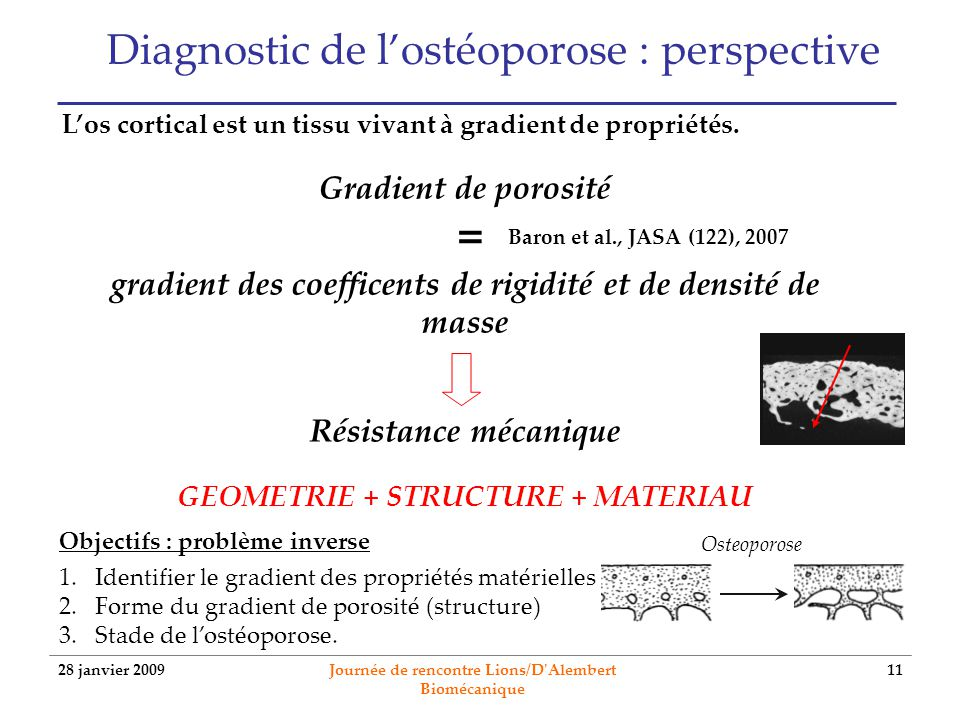 Diagnostic de l'ostéoporose : perspective