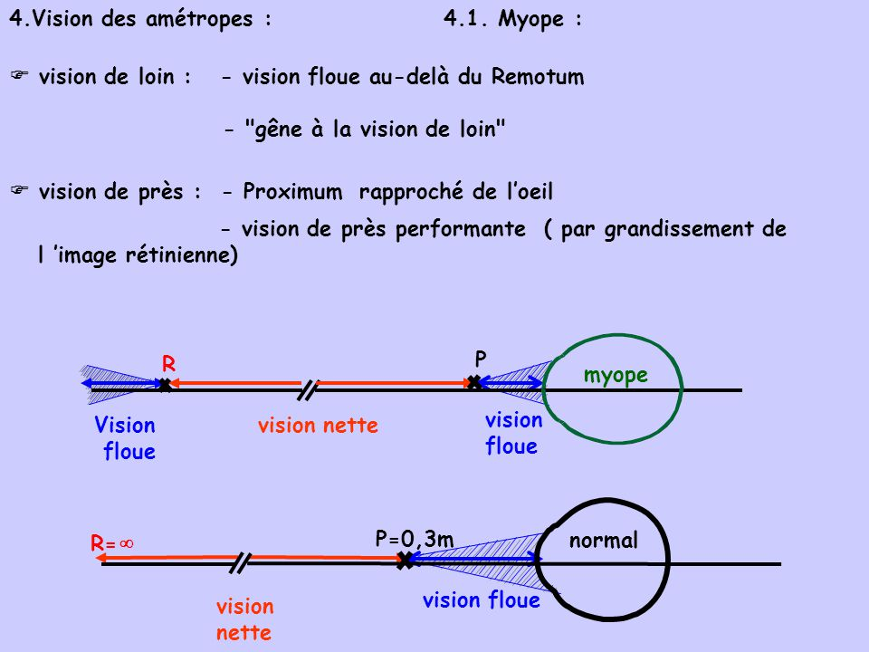  vision de loin : - vision floue au-delà du Remotum