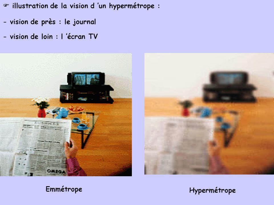  illustration de la vision d 'un hypermétrope :