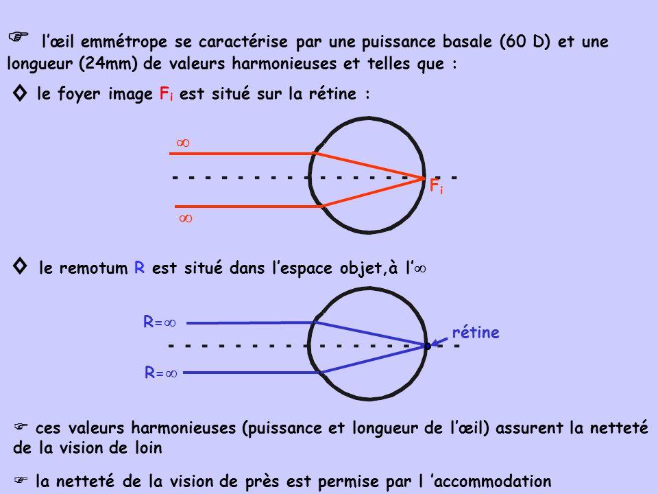  l'œil emmétrope se caractérise par une puissance basale (60 D) et une longueur (24mm) de valeurs harmonieuses et telles que :