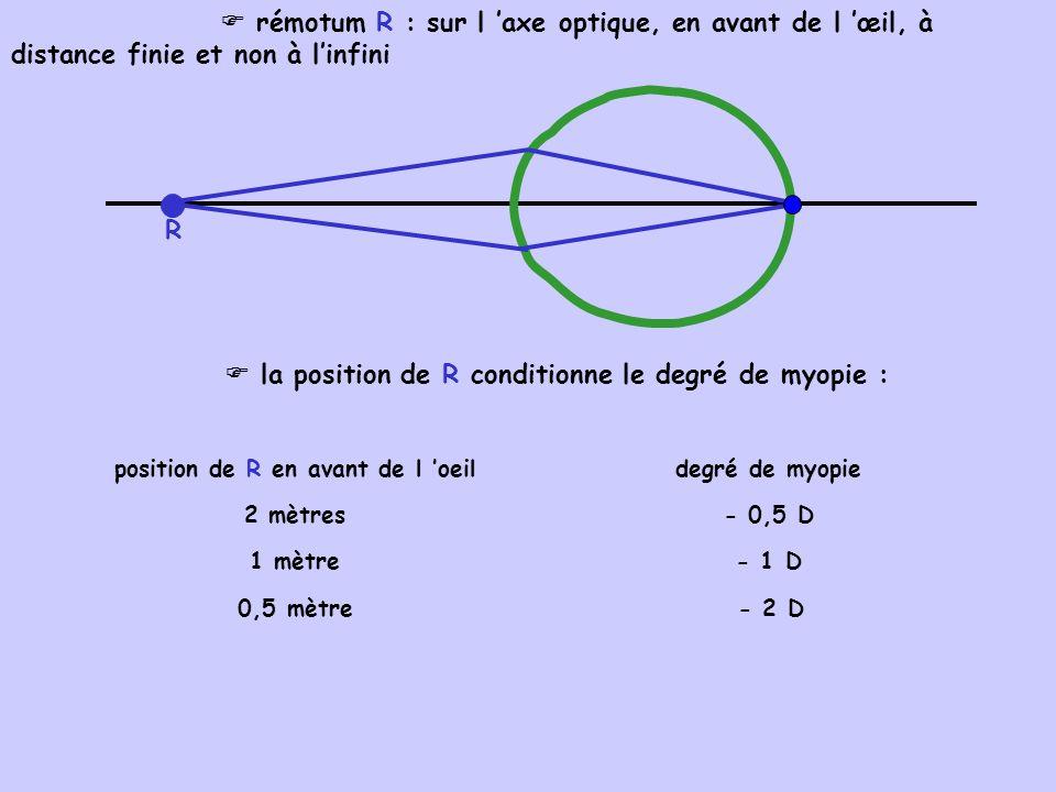 position de R en avant de l 'oeil