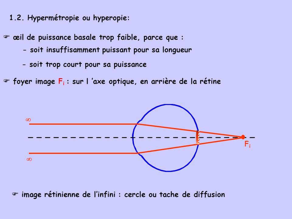1.2. Hypermétropie ou hyperopie: