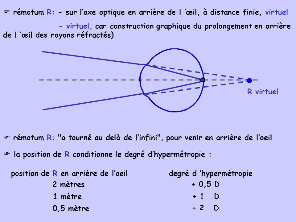  rémotum R: - sur l'axe optique en arrière de l 'œil, à distance finie, virtuel