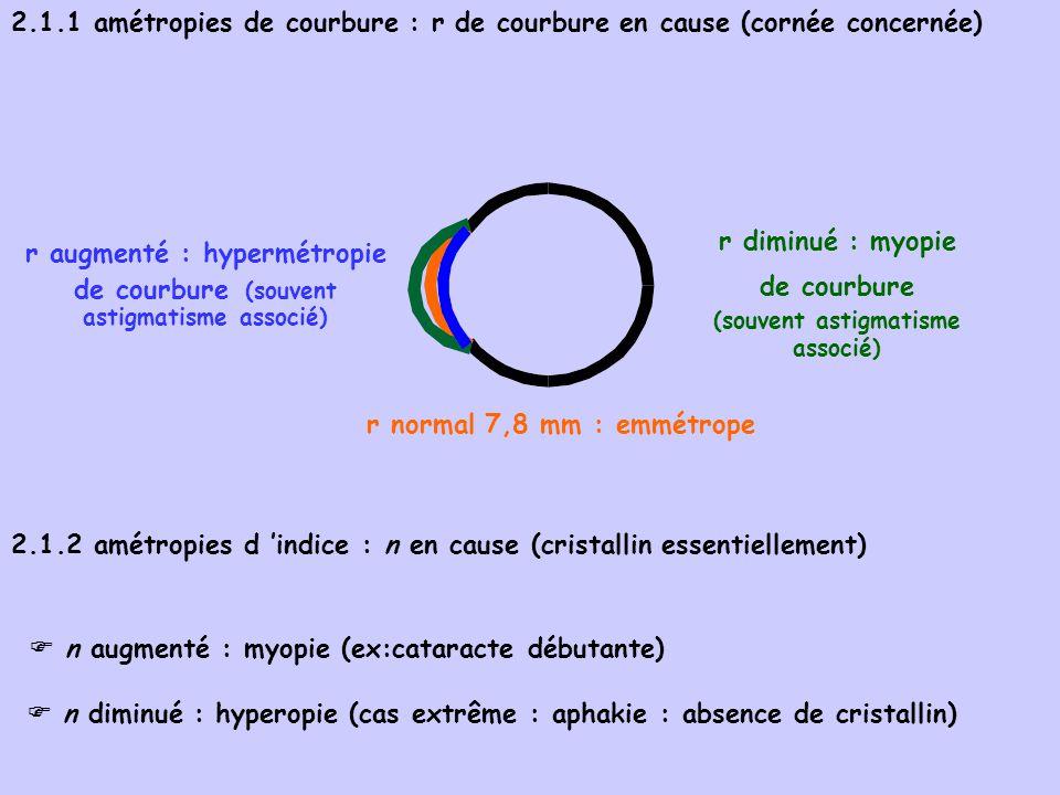 r diminué : myopie de courbure (souvent astigmatisme associé)