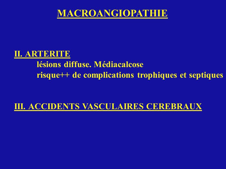 MACROANGIOPATHIE II. ARTERITE lésions diffuse. Médiacalcose