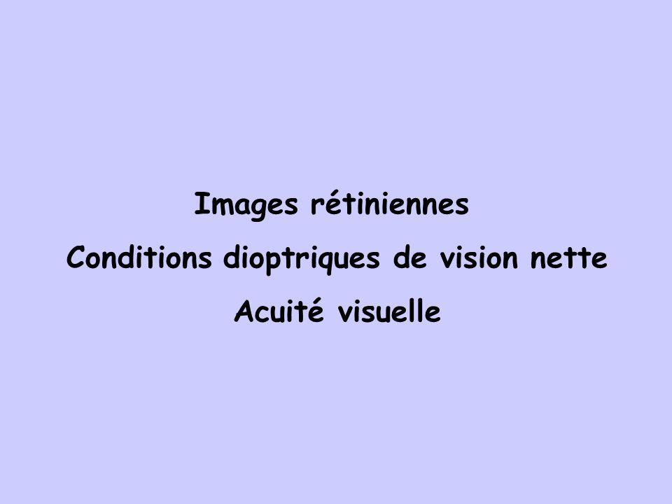 Conditions dioptriques de vision nette