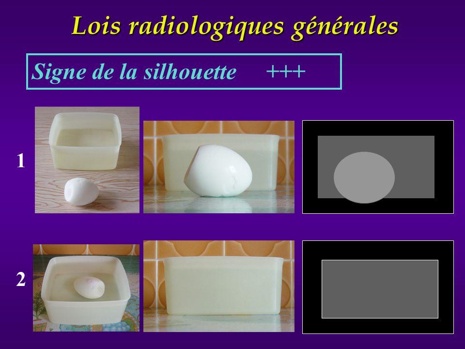 Lois radiologiques générales