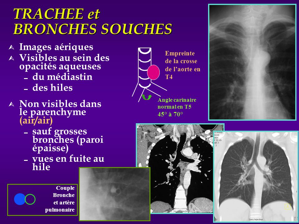 TRACHEE et BRONCHES SOUCHES