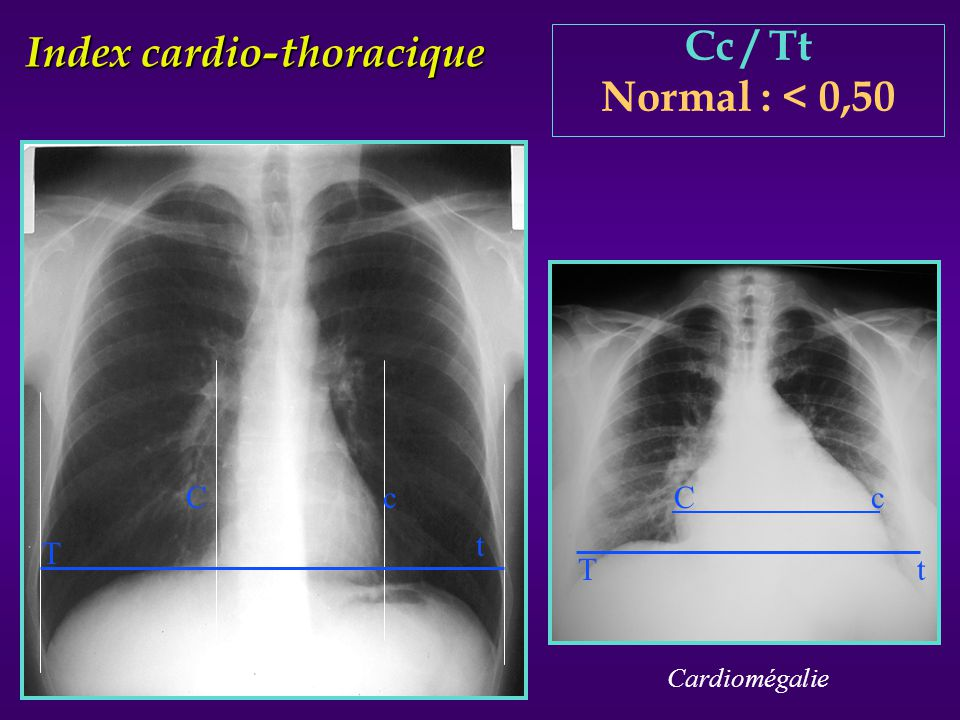 Index cardio-thoracique