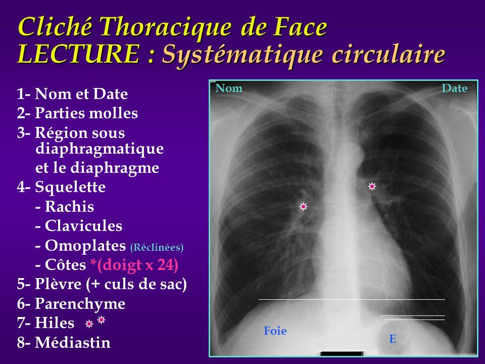 Cliché Thoracique de Face LECTURE : Systématique circulaire