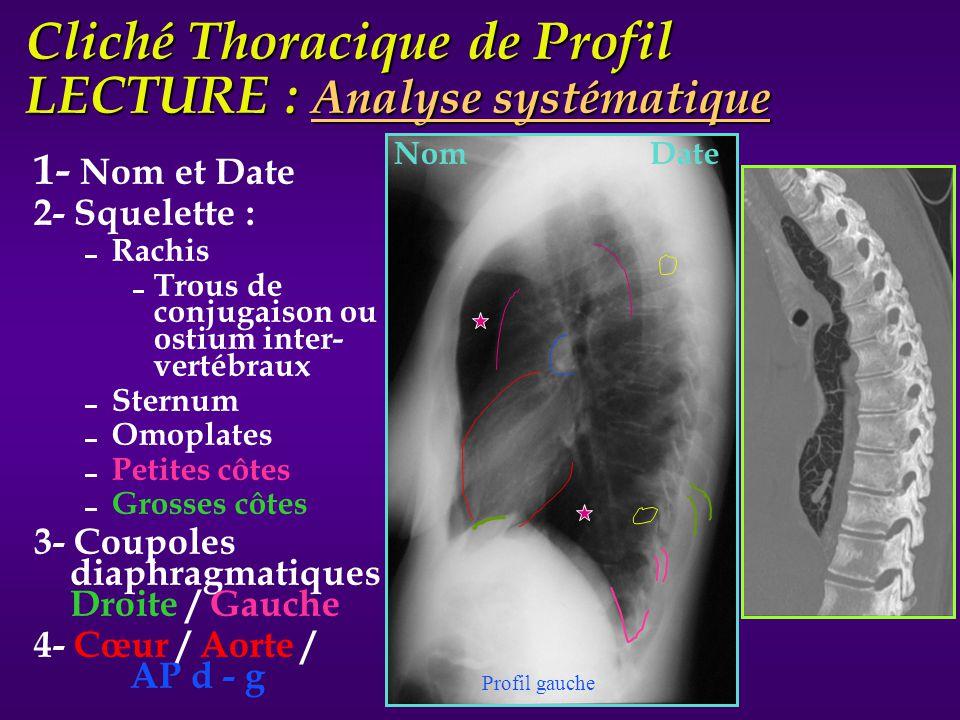 Cliché Thoracique de Profil LECTURE : Analyse systématique