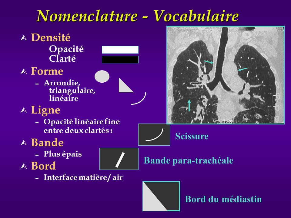 Nomenclature - Vocabulaire