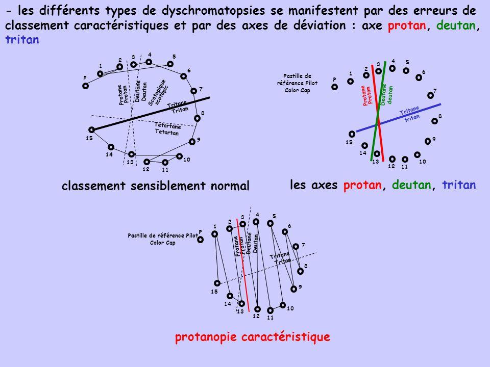 classement sensiblement normal les axes protan, deutan, tritan