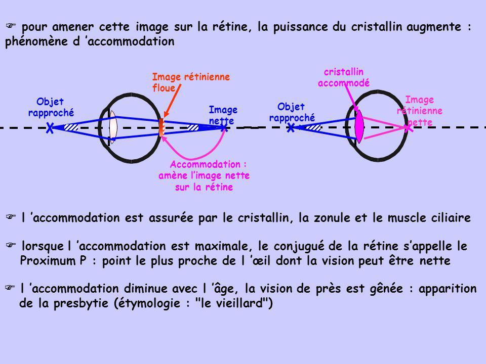 Image rétinienne nette