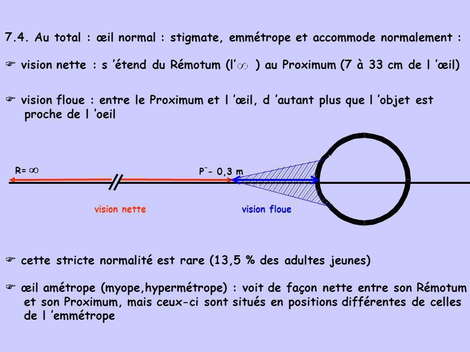 7.4. Au total : œil normal : stigmate, emmétrope et accommode normalement :