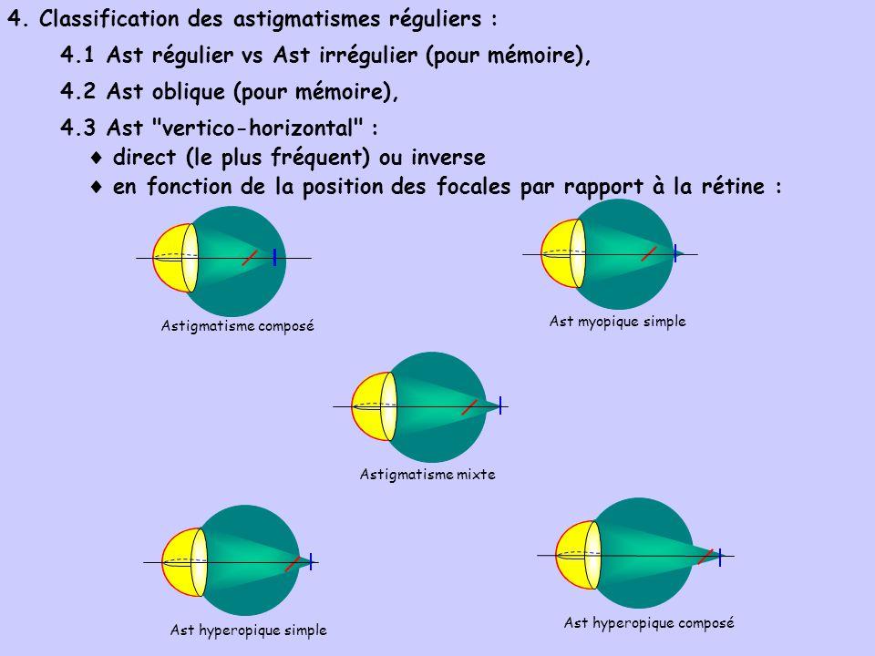 4. Classification des astigmatismes réguliers :