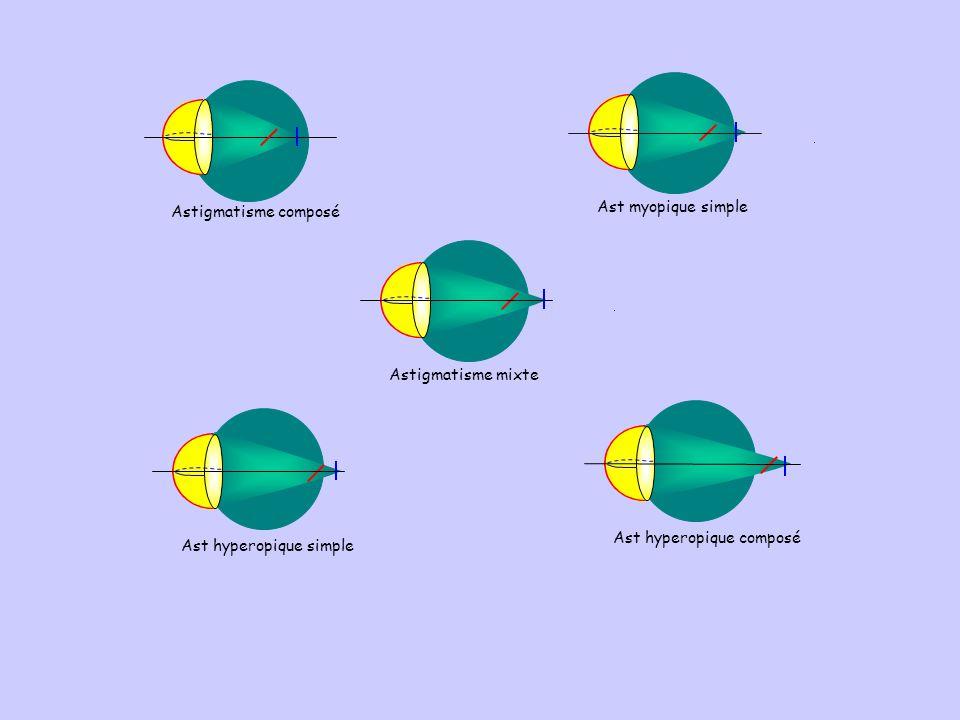 Astigmatisme composé Ast myopique simple. Astigmatisme mixte.