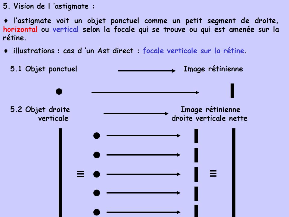 5. Vision de l 'astigmate :