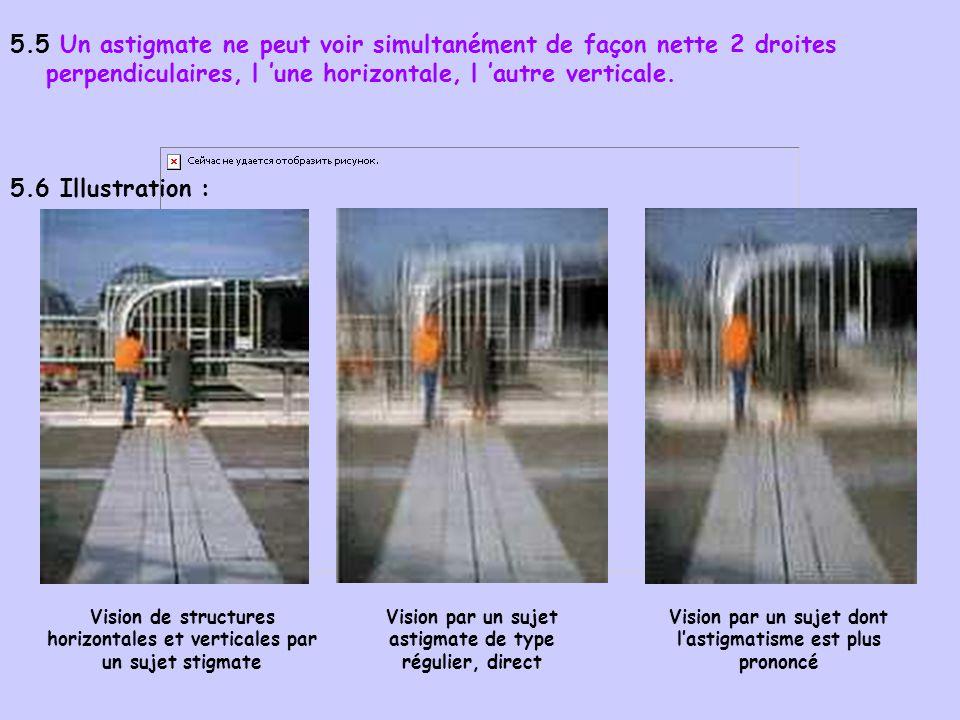 5.5 Un astigmate ne peut voir simultanément de façon nette 2 droites perpendiculaires, l 'une horizontale, l 'autre verticale.