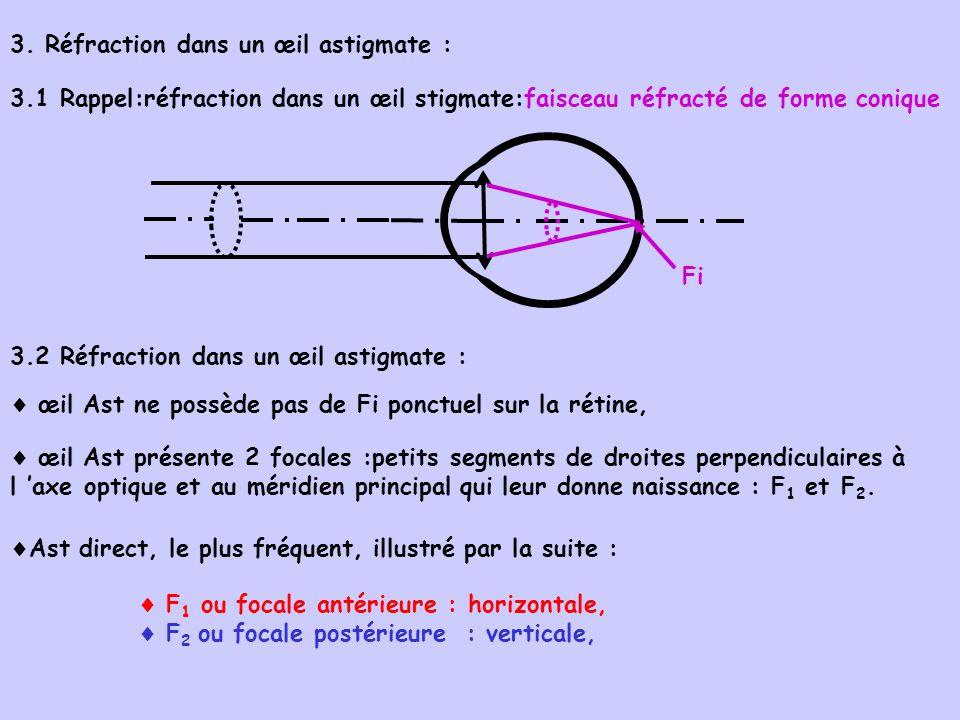 3. Réfraction dans un œil astigmate :