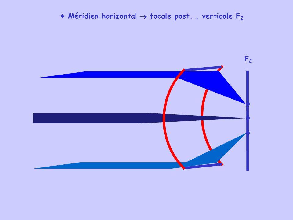  Méridien horizontal  focale post. , verticale F2