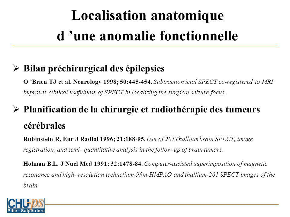 Localisation anatomique d 'une anomalie fonctionnelle
