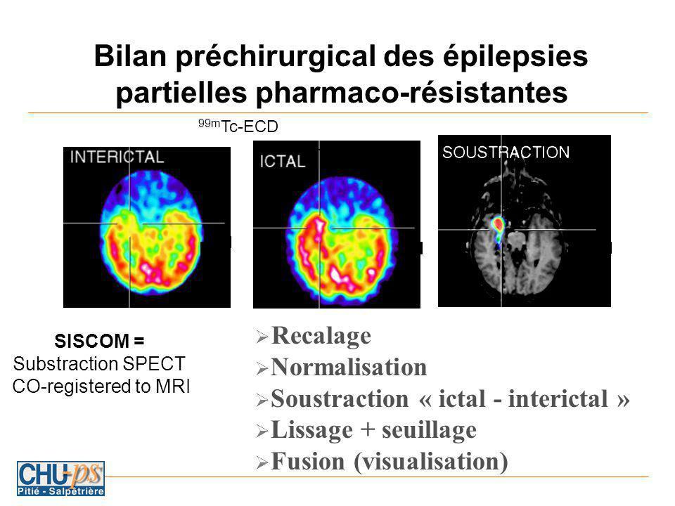 Bilan préchirurgical des épilepsies partielles pharmaco-résistantes