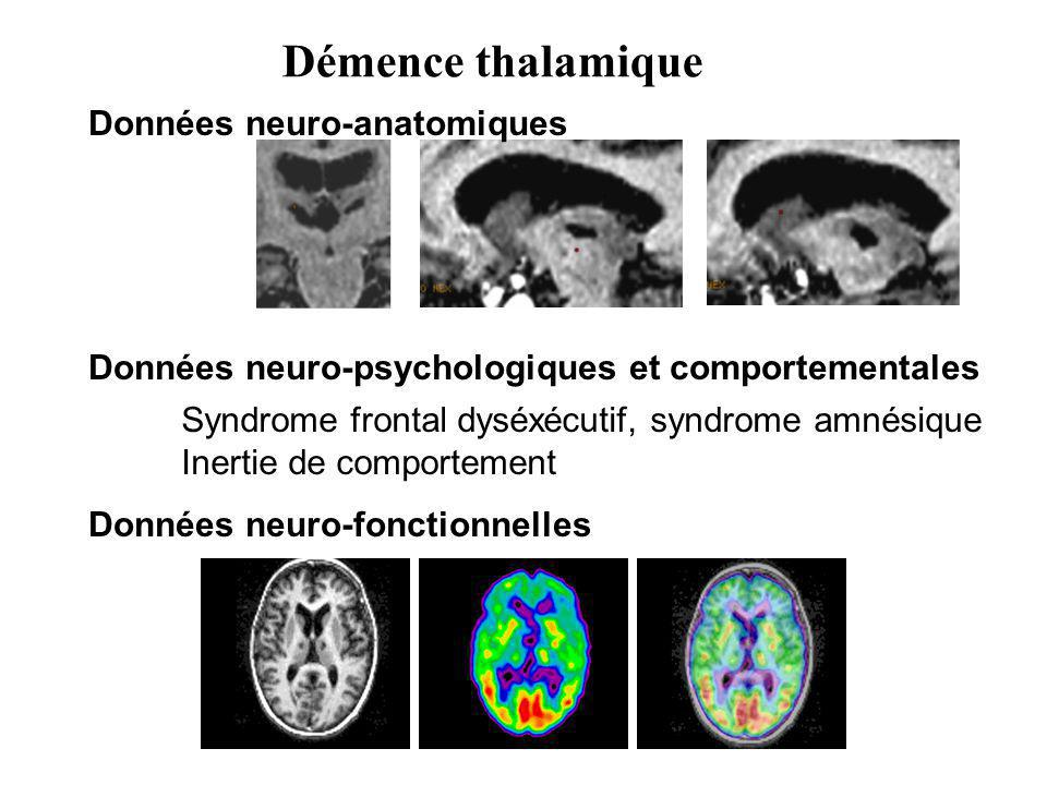 Démence thalamique Données neuro-anatomiques