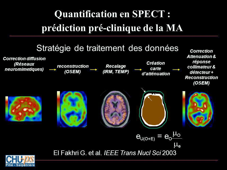 Quantification en SPECT : prédiction pré-clinique de la MA