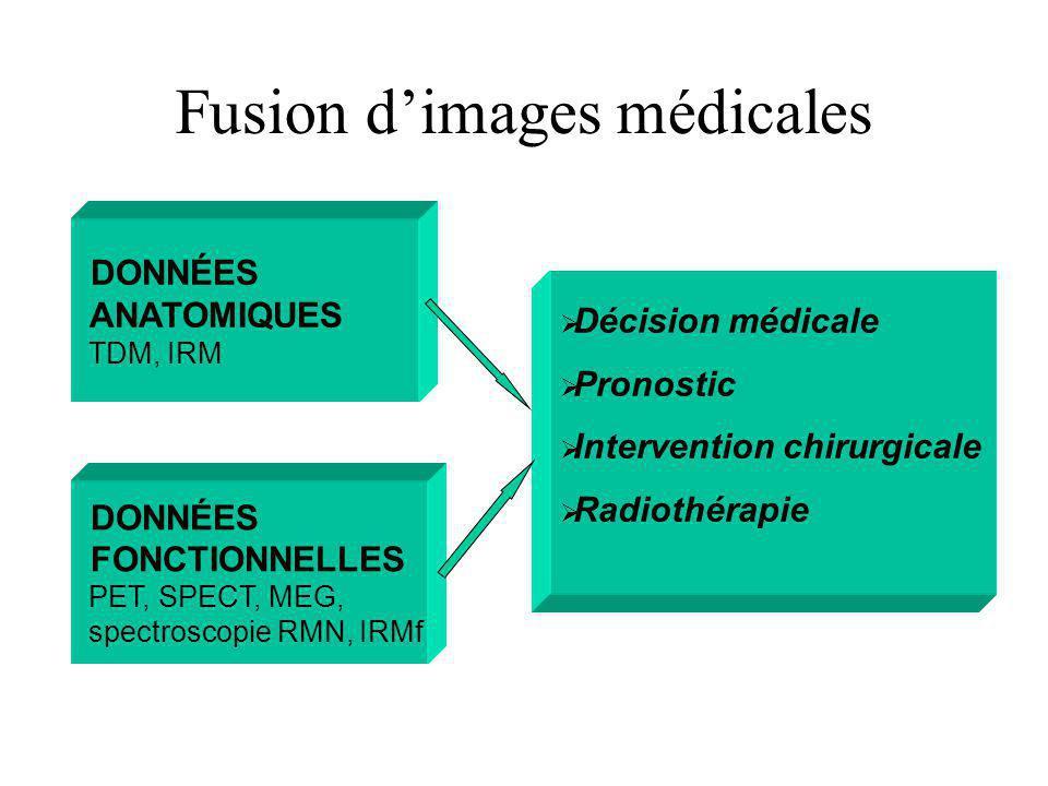Fusion d'images médicales